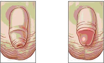 Sünnet derisi ile penis                                 Sünnet olduktan sonra penis görünüm